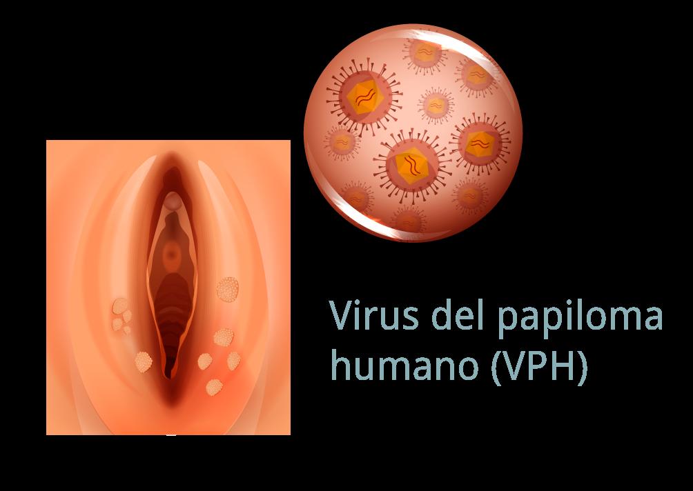 ginecologie papiloma om)